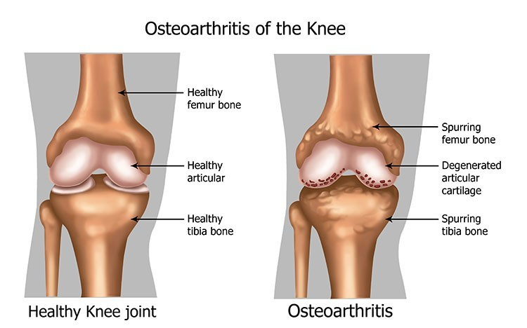 Osteoarthritis Pain Relief In Bellingham , WA - Bellingham  Acupuncture Clinic
