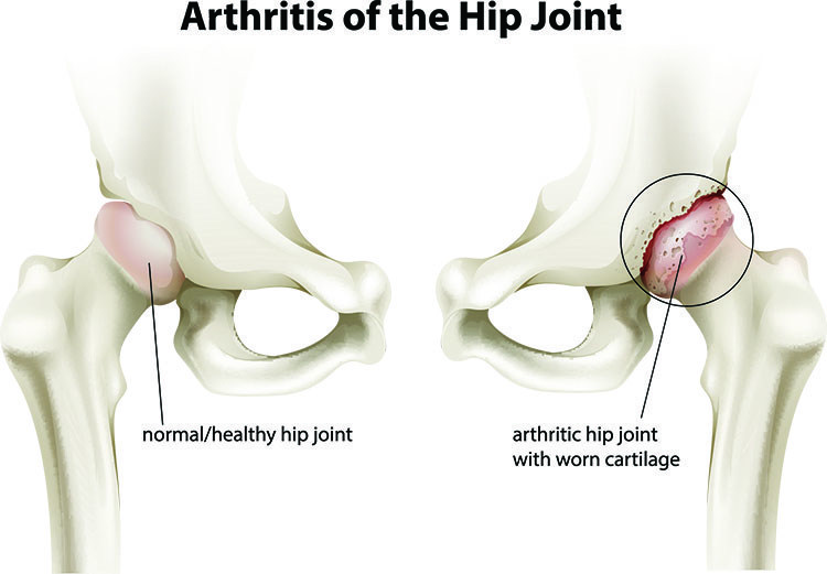 Arthritis Pain Relief In Bellingham , WA - Bellingham  Acupuncture Clinic