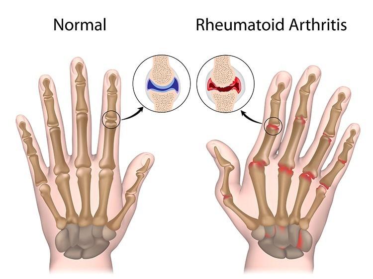 Rheumatoid Arthritis Pain Relief In Bellingham , WA - Bellingham  Acupuncture Clinic
